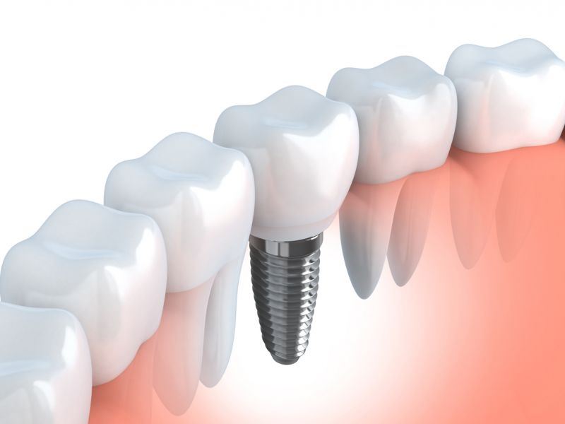 dental implant in chicopee